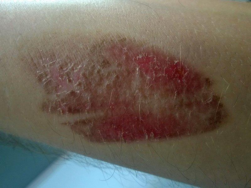 Zdravljenje opekline - 6. dan