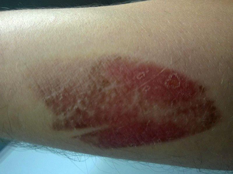 Potek zdravljenja opekline - 5. dan