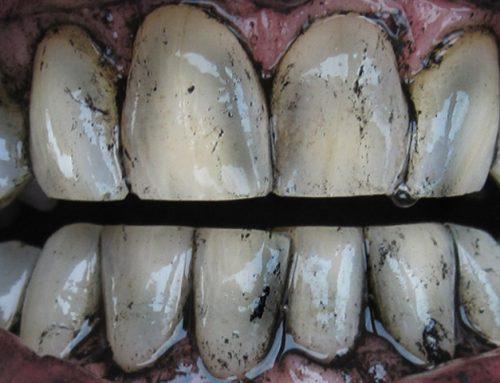 Čiščenje zob z ogljem