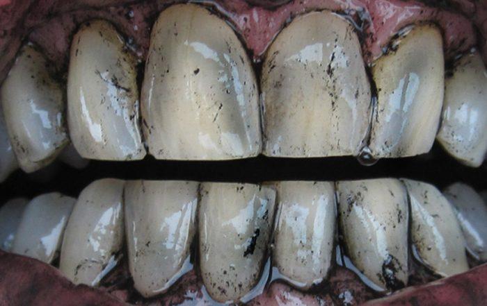 Čiščenje zob