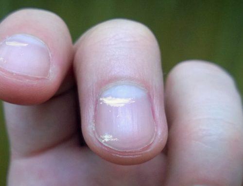 Bele lise na nohtih – kaj se dogaja v telesu?